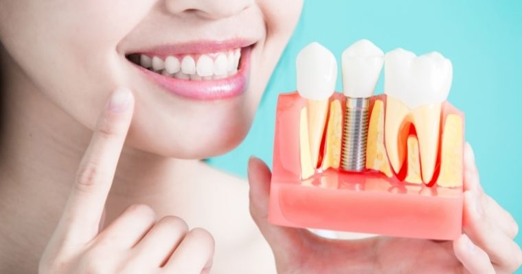 Woman smiling and holding up a model of a dental implant.